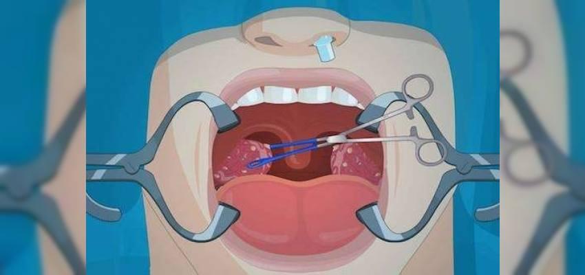 Bademcik Ameliyatı (Tonsillektomi)