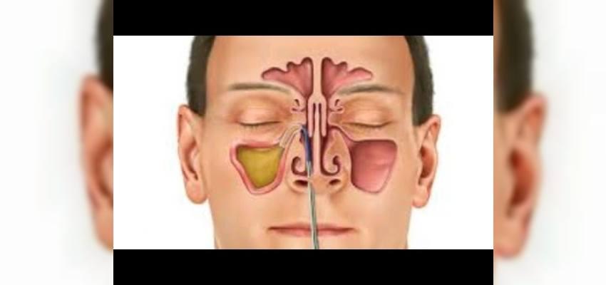 Balonla Sinüzit Ameliyatı: Balon Sinoplasti